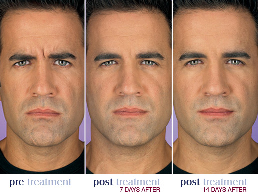 anti wrinkle for men