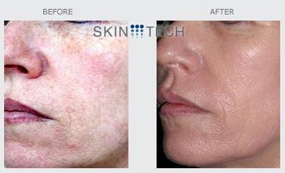 skin-tech treatments