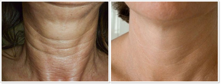 Neck: Before & After