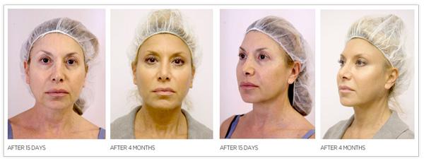 before-after1en