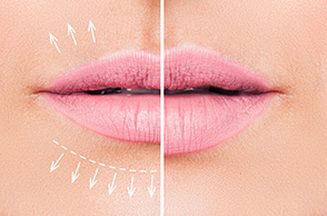 Your Ideal Lip Shape